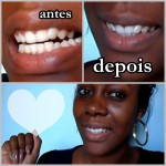 clarear os dentes em casa,clareamento caseiro